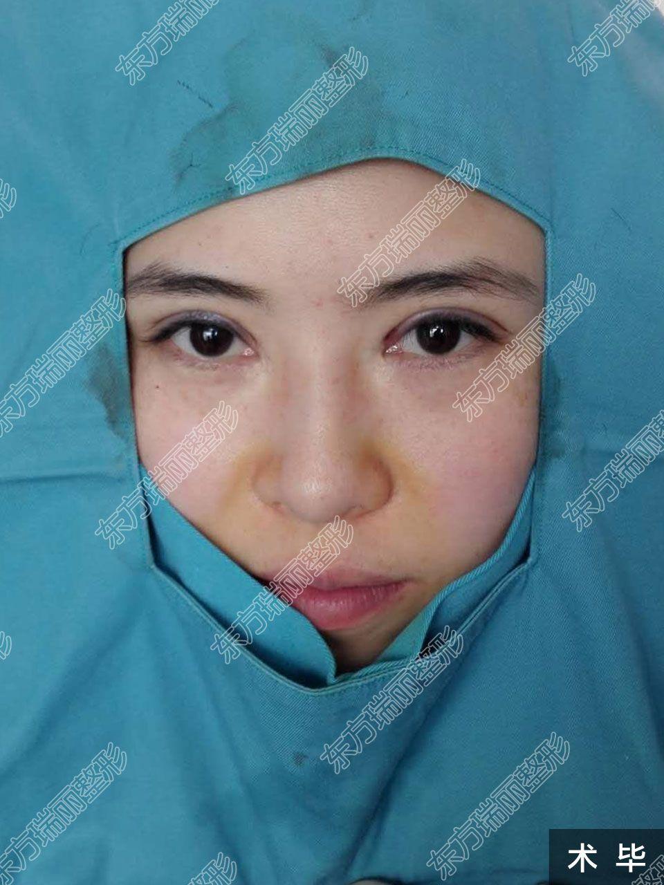 全切双眼皮,手术台上术前术后对比照,术毕效果非常明显哦