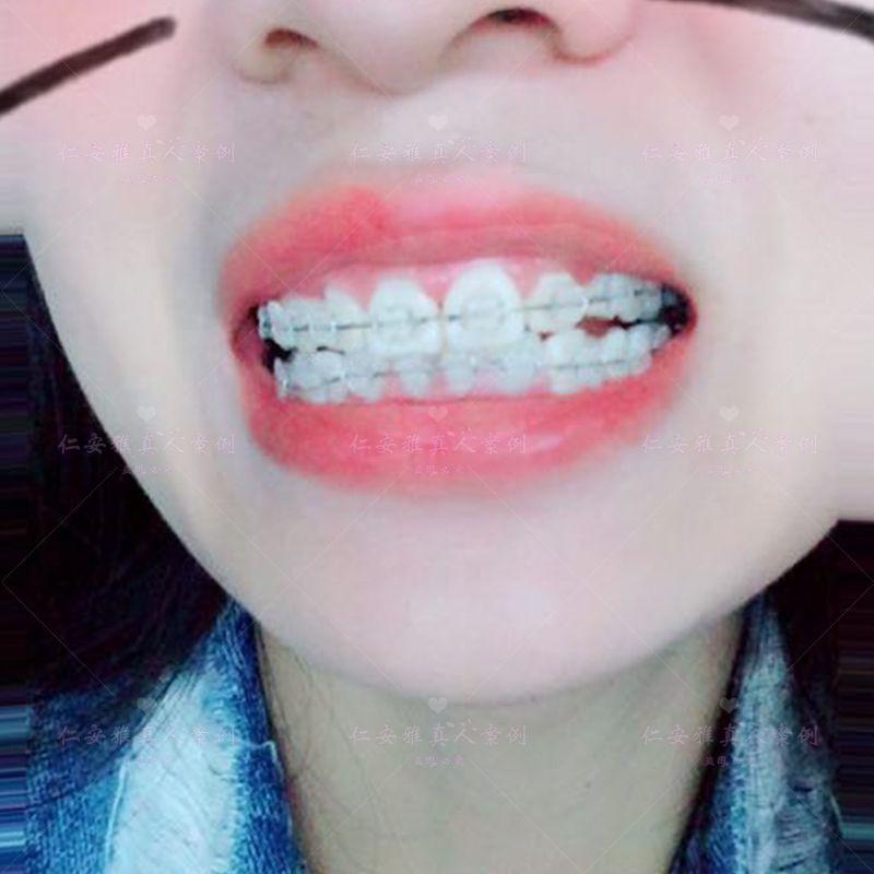 【顾客术后分享】 很久没来了,在过几天来去取牙套了,在给大家看看我的半隐型牙套,下次发照片就是没牙套的时候了,好期待呀,终于要去掉牙套了,以后可以随便打消了,终于可以笑着拍照片了。