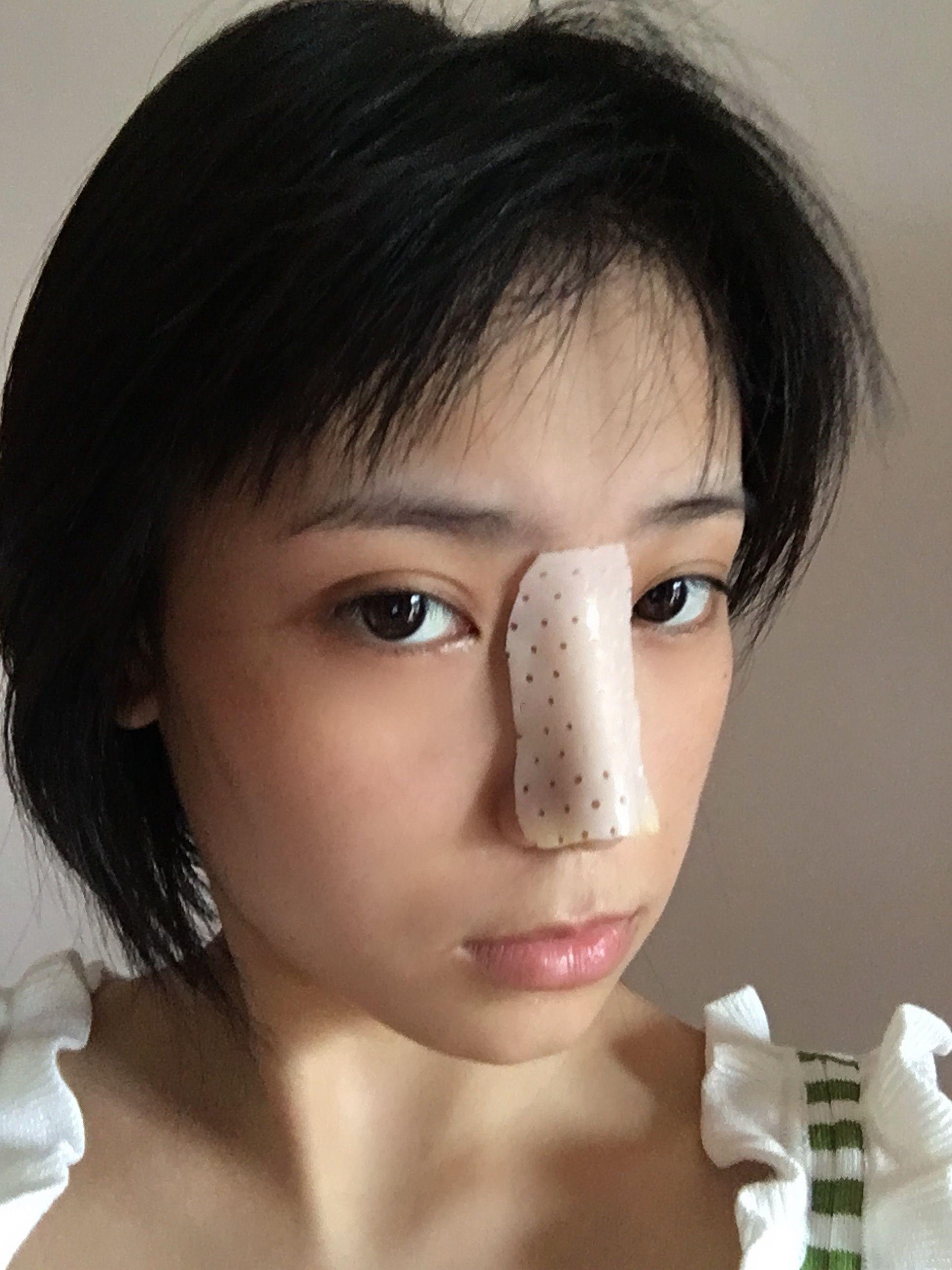 今天已经是术后拆线了,纪念一下变美的时刻,刚开始几天鼻夹板在鼻子上真的有点不舒服啊,现在,到现在没有什么感觉了,医生说这个是为了固定鼻假体的位置等。说实话,这几天我真的没有怎么去碰它,每天都是小心翼翼的,不过刚去了夹板之后真的舒服的好多,鼻子真正的弧度我终于看到了,心里乐开了花啊!