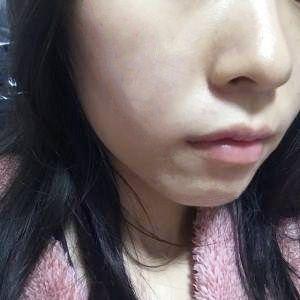 做了光子嫩肤之后,这皮肤真是一天一个样,今天更新的是做光子嫩肤之后1个礼拜的效果,通过照片就能明显感觉到脸上的皮肤光滑很多,而且也显得白了。脸上的痘痘,也变小了,就剩下点红色的印子了,看来做光子嫩肤对皮肤改善还是很有好处的,但是做完光子嫩肤也要注意防晒才行,要不更容易晒黑??!!总之术后好好听医生的话做好护理才是真的。