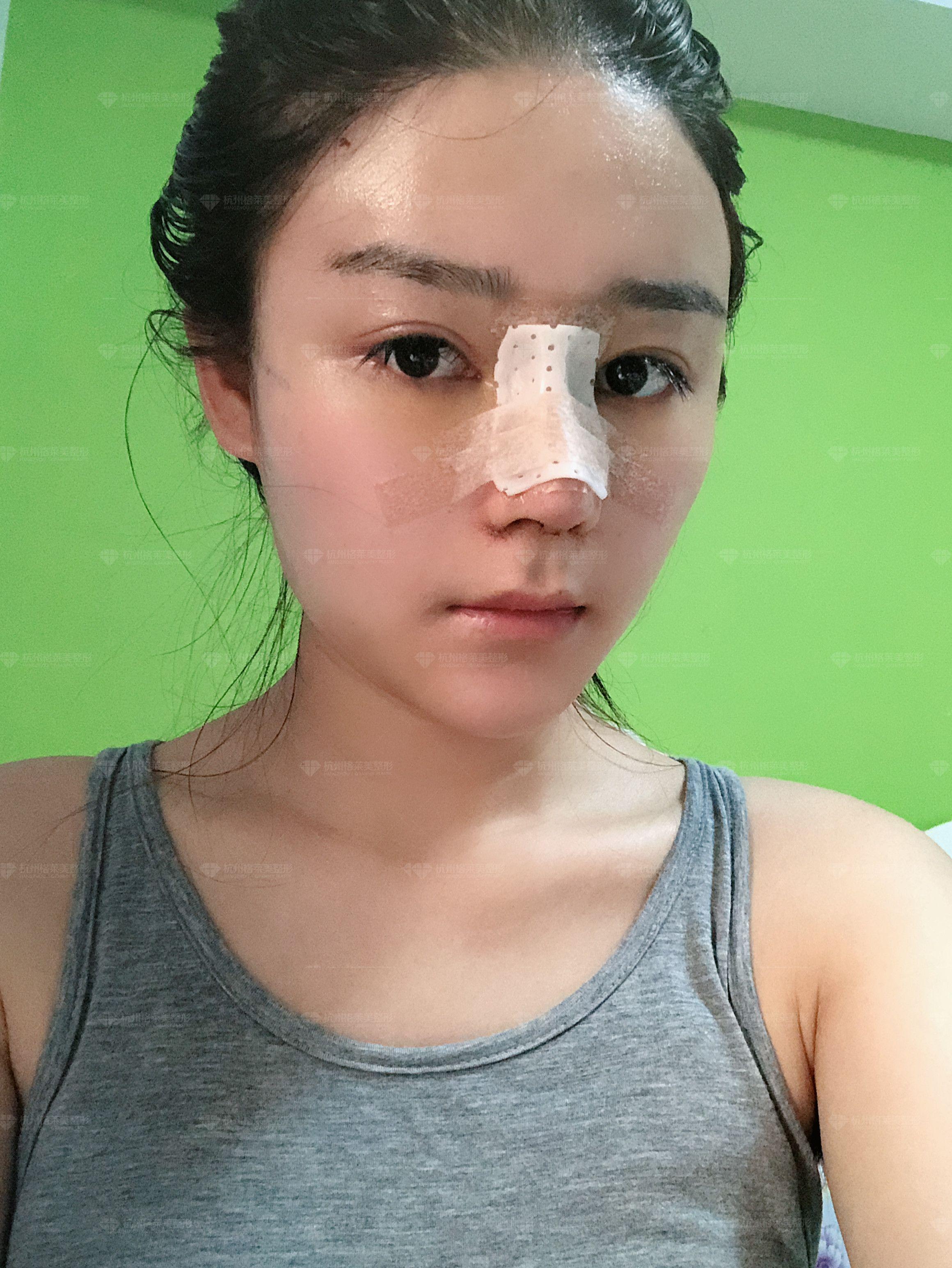 术后几天都要来医院挂盐水,因为要消炎,做眼睛就不用挂盐水了。做完脂肪填充之后是不能用热敷或者冰敷的。现在的耳朵没有一开始的那么疼了,但是还是不能碰。有些人说做肋软骨的也会很疼,但是我觉得做耳软骨也是疼的,只要取软骨有伤口肯定都会疼,鼻子但是不怎么疼,也不知道为什么,现在是不能碰我的鼻子,所以我日常生活中还是特别的小心,不能碰到各个伤口,塑身裤也还是穿着,因为太热了所以基本上都只能在室内