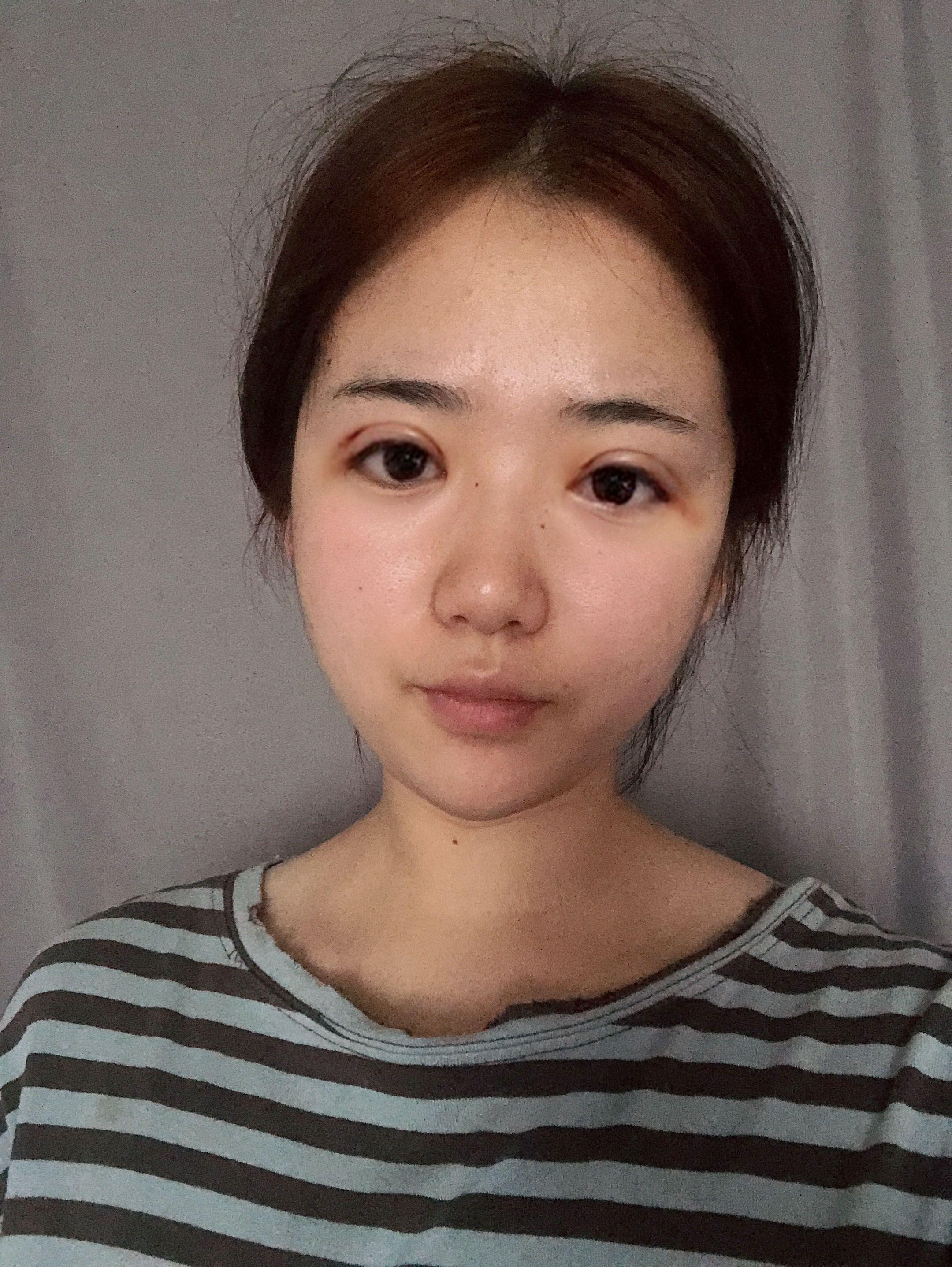 今天拆线啦,终于等到拆线的日子,整个人都轻松了许多,如释重负!问了医生说两天后就可以开始沾水了,为了伤口愈合,再坚持两天!  现在基本可以正常露脸了,之前出门的时候我还会戴个墨镜遮遮。不知道是个人体质还是医生技术的缘故,我感觉我没有别人做了双眼皮后肿的那么可怕,应该是医生技术好吧嘻嘻,很开心~