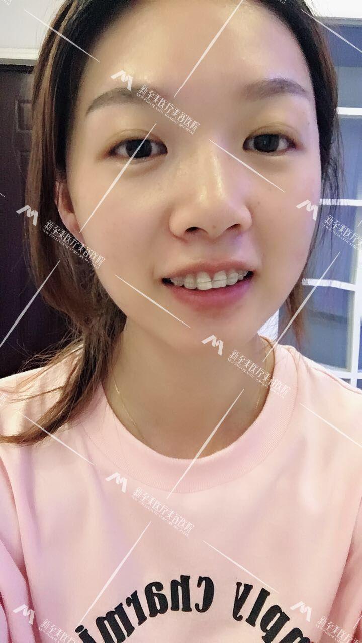 牙齿矫正第3天,顾客来院后,问了她有没有不适应,让她坚持几天这种不适应就会得到改善。给她检查了牙套有没有松,定期来院复查,按时反馈效果。