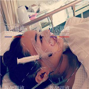 术后7天了,今天就是我要拆线的时候,这段时间在医院很开心,感谢护士小姐姐和医生无微不至的照顾,也教了我很多有用的方法消肿,期待后期的恢复效果。 外地人一个人来上海做手术受到这样的照顾还是很开心的,谢谢丽格。首尔丽格的环境和服务是对得起上海和韩国两地档次的,反正给人一种高大上有很和气的感觉。等我恢复好了我还想在这里做皮肤的项目。临走的时候还想谢谢给我做手术的医生,但是听护士说院长在做手术也就没有去打扰。
