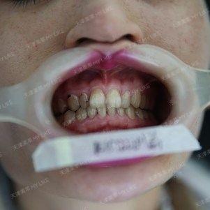 跟医院那边提前预约了号位。早就想整牙了。因为我牙齿不齐,牙齿弧度不佳,之前也听朋友提起过天津美莱口腔,是美莱整形医院里面独立的口腔科室,感觉还是挺好的。天津美莱医院环境啥的我就不多说了,给我印象深刻的感觉就是干净!一个干净的就医环境让我感觉很放心!医院很好找,很大的一栋楼,在十字路口。