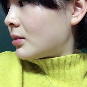 我做的是下颌缘吸脂,和埋线提升如果大家脂肪没有我堆积严重的话,其实单做埋线就可以瘦脸。吸脂要先做,一个多月后等恢复差不多了,就可以做埋线了。