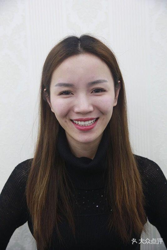 牙齿贴面是牙齿美白修复的技术一种,牙齿贴面修复就是在变色或缺损的牙表面粘贴一层近似正常牙色的材料,达到美白或修复的作用!让你变成一个爱笑的女孩。