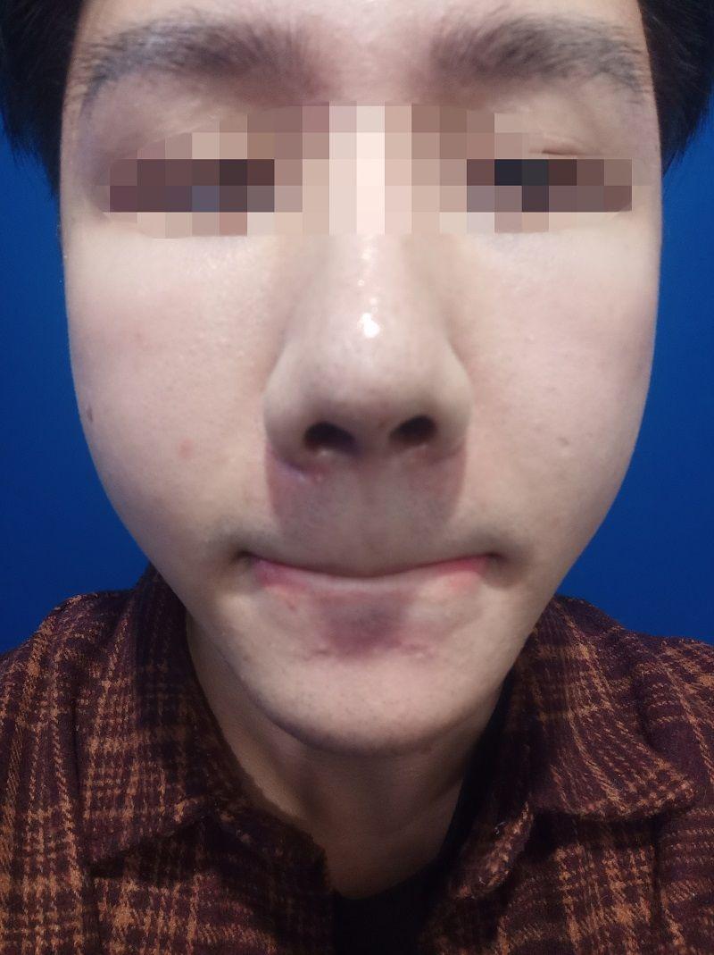 可能是光线问题,感觉皮肤都变好了很多,因为这段时间我脸部感觉很多闭口和粉刺,我还在问护士小姐姐,能够做什么项目祛除这些呢,上次在光博士祛斑我觉得很满意,护士小姐姐也细心给我推荐,说是可以做果酸焕肤或者光子嫩肤。    看下次什么时候有空过去了解一下这个哦,毕竟青春期的男生脸上就是容易长这些,难受啊。