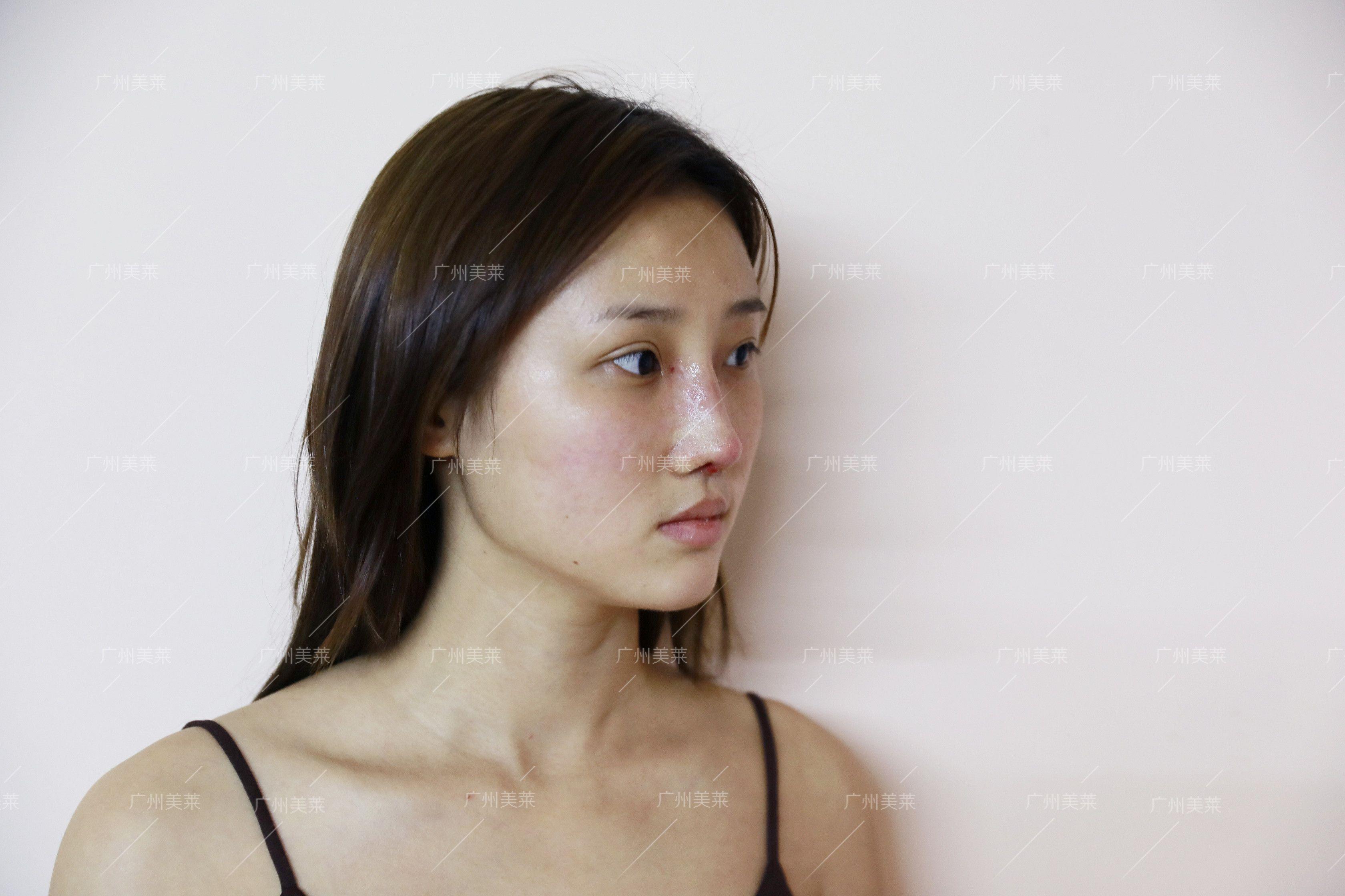 今天回来医院拆线了,小姐姐给我拍的照片,脸都油到发光,头发也是脏到不忍直视,鼻子还是肿肿的,效果还看不出来,完全消肿吸收应该要2个月,所以后续我还会继续给大家更新恢复情况。