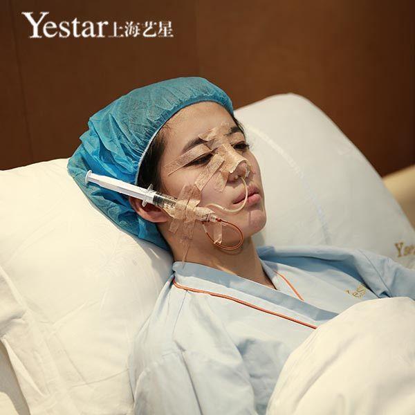 【切开双眼皮+宫廷复合隆鼻】术后第1天, 一直对自己的眼睛跟鼻子都不是很满意,也在网上找了好多家医院咨询,最终选择的是上海艺星医院,医院坏境跟服务还算是很OK 的。嘿嘿,今天做了手术,才第一天有点不舒服,医生叫我不要紧张,放松心情。期待期待。。。