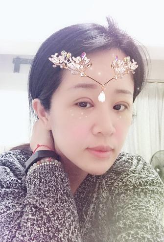 我又来更新啦,双眼皮现在已经自然了很多,也消肿的许多,双眼皮的轮廓也渐渐清晰了,呼这么冷的天我都不敢洗脸了,眼睛也是用温水轻轻擦擦,真的是很冷,所以小仙女们注意保暖啊。