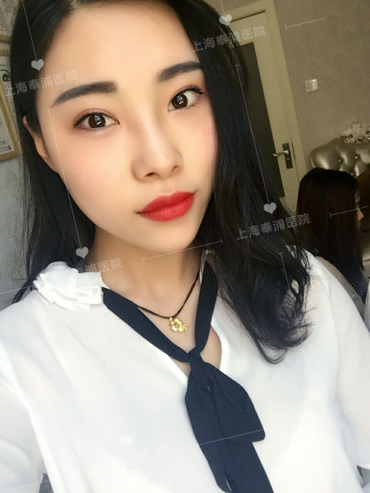 今天要跟大家分享的是我去上海奉浦医疗美容打了瘦脸针和玻尿酸填充隆鼻的心得 先来唠唠我原本的脸型吧,其实也不算太胖、不算大,可是我的咬肌嚼肌很大块,所以拍照的时候整个脸就会看起来很大 之前有朋友说过我的脸要是在继续大下去,脸就不能再看了,桑心~~ 再来唠唠我的鼻型,说真的没有山根的鼻子真的是撑不起来脸部的颜值,,侧颜也只能看到一个大脸和鼻头了,怎么拍照都不好的那种,你们知道那种自卑感吗? 所以我就决定在医院解决我的困扰了......