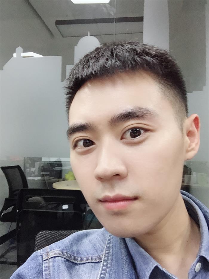 港丹不开刀祛眼袋术后两个月,L先生眼袋去得非常干净,未见复发。
