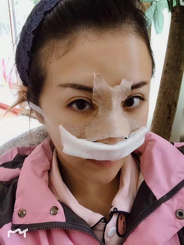 心心念念的鼻子终于做了,可以美美的过大年啦!哈哈~一直以来对自己鼻子不满意,我很喜欢鼻子很好看的小姐姐,觉得特别有气质,真心觉得鼻子挺整个五官就会显得很立体,无奈自己是个塌鼻子大鼻头。于是年前终于鼓起勇气做了鼻子。 去的医院是小姐妹推荐的,选择的医生是他们技术院长:沈正宇  这个医生真心不错,面诊的时候很好沟通,也很耐心。我只是说了要求,他给了项目建议,还有效果预估,不愧是整形界的元老级大佬 手术前要全身体检的,还有身体如果有什么状况的话一定要和医生说,以便医生能准确的判断。我是打了全麻手术的,所以手术过程并没有感觉到疼,整个手术时间大概两个多小时吧,因为自己从来没做过手术,所以还是觉得很新鲜哈哈~术后在贴鼻夹之前护士拿了镜子给我看看效果,看着效果不错,有鼻梁了,术后虽然有点肿胀,但是有了鼻梁后很漂亮,术后即刻效果非常好,非常开心。 术后护士小姐姐告诉我注意事项,还有一周后要过来拆线,期待……