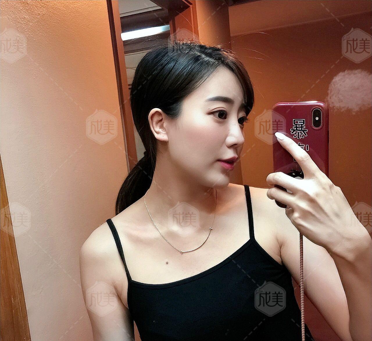 二十岁的时候觉得自己很年轻嘛,不用护肤保养照样满脸胶原蛋白,连防晒都懒得涂,现在觉得保养抗衰还是越早越好,然后会发现自己比同龄人年轻好多。