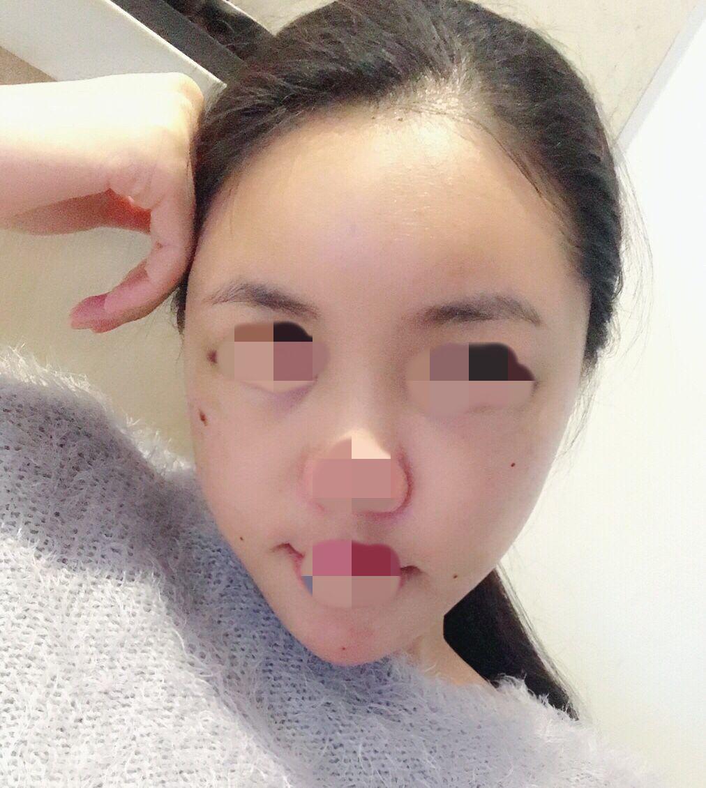 因为带牙套导致严重的牙套脸,太阳穴、脸颊凹陷严重,客户决定做自体脂肪丰全脸来改善面部凹陷问题,术后第2天,明显看到脸部的线条柔和了