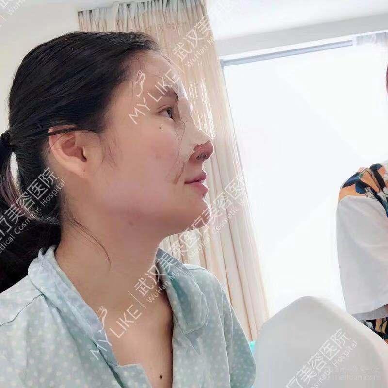 武汉美莱鼻综合图片