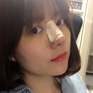 第九天了,眼睛下面还有一点点黄,右鼻孔鼻塞,鼻子有点干干的,不知道啥时候才能好,这个月去医院看一下吧!