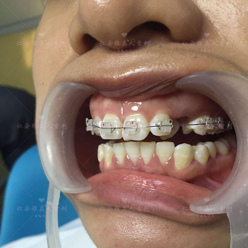 【顾客术后分享】 2017年6月19日,终于把我牙套给上了,上个星期过去把乳牙拔掉,过了7天才上牙套。古医生说先上着,过一个星期等我的咬合垫到了再把里面那颗牙齿牵引出来。牵引那颗牙齿的时间大概是3个月左右,听到古医生说才要3个月左右,我开心得都想跳起来了,原来我还以为要一年左右呢,现在就是巴不得时间快点过,牙齿快点好! 里面的牙齿牵引好了之后就可以上下面一排的牙套了,然后就是慢慢地排牙! 第一次到仁安雅,觉得环境还可以,接待也热情,古医生是一个有点小胖的中年医生,属于那种比较老实比较实在的中年男人,拔牙的时候我都怕死了,但是古医生比较有耐心,慢慢慢慢地拔,所以我以后也不怕啦,因为医生技术好又有耐心!