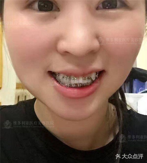 上次偶然在维多利亚洗了个牙的功夫,让我对我的牙齿有了新的认识~我要好好跟你们讲讲~一直都知道自己的牙丑,嘴还比较凸,平时照相什么的都是捂着嘴的~而且一笑,嘴角还是有点歪的,面诊的时候才了解到是我牙的问题,好像是因为我的颌平面不平还是什么,导致的我一笑嘴就有点歪~而且侧脸看,嘴很凸,上牙的大牙是凸出来的,牙齿都长挤一块儿去了~给你们上图,让你们看看~你们就知道了