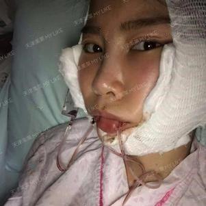 术后第二天依旧吃藕中。。。。  有点难受嘴里有管子很胀,但没有想象的那样疼,但这个肿却是不在我的意料之中的。护士妹妹安慰我说不用担心,肿会慢慢消的。