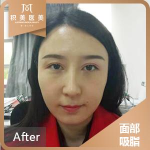 吸脂瘦脸有小半个月了,脸上已经消肿了,完全不影响工作和生活。过多几天我还要去医院复诊呢,到时候看看变化有多大。