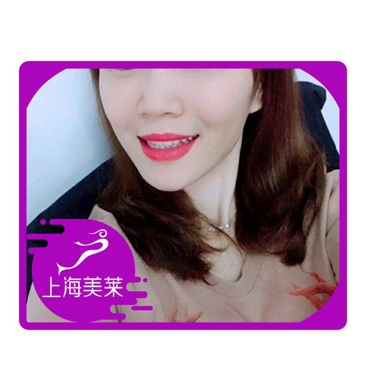 牙齿贴片美白就是这么让人自信灿烂笑。很多人说抹红色口红,牙齿就得时刻是洁白的,要不一笑就尴尬了,而我就不怕了!