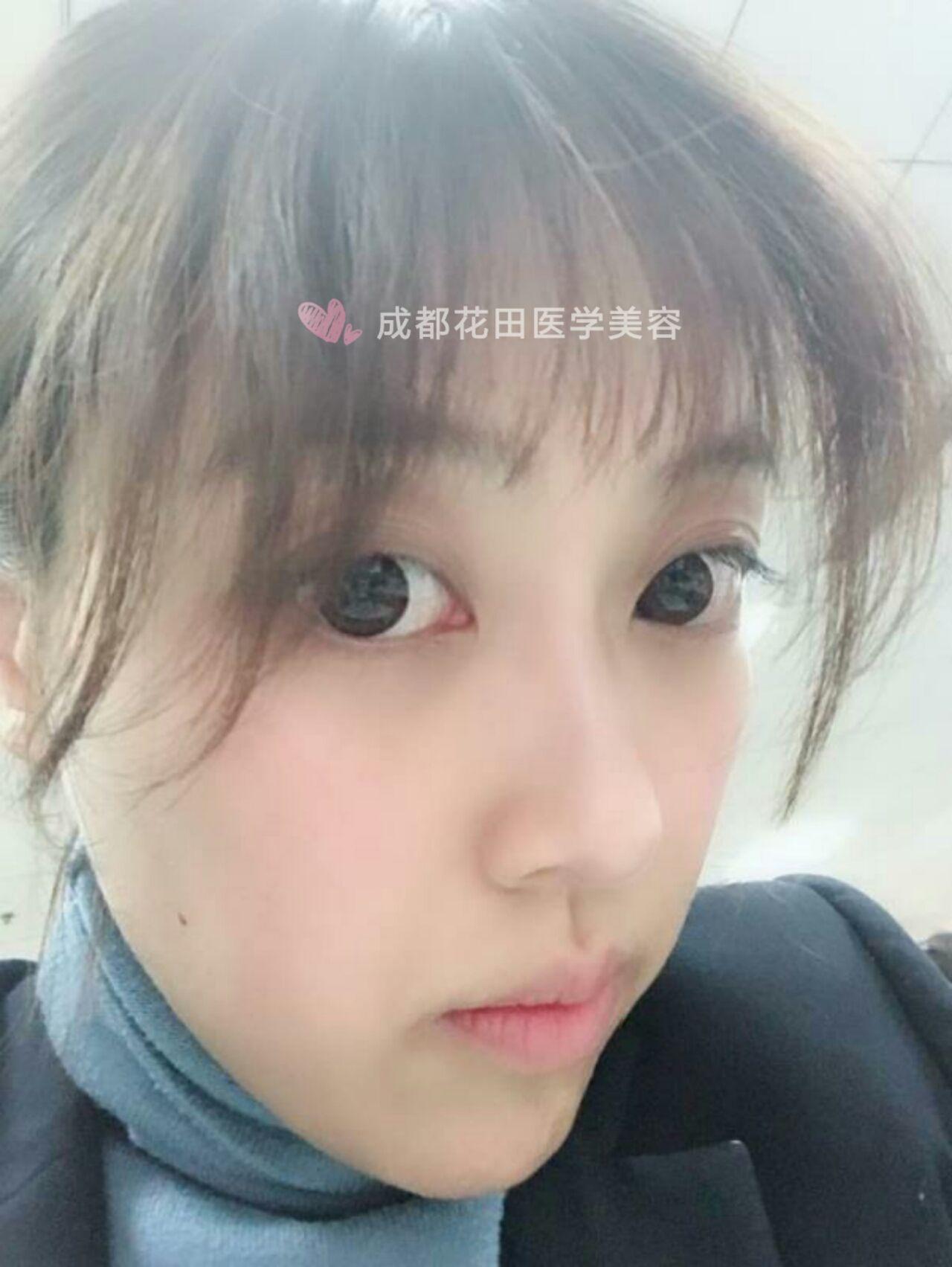 """宝宝日记:""""术后已经一个月了,眼底皮肤越来越紧致了整个人的状态都好了很多,可喜可贺也没有出现泪沟深陷的术后情况,只是最近睡眠质量差,黑眼圈比较明显,眼部保养实在很重要啊,眼膜和眼霜必须用起来啦,最后希望那些有眼袋困扰的做了手术后越来越漂亮。毕竟现在女人的保养意识越来越强了,一张年轻精致的脸比几十万的手袋可更值得让人羡慕,对自己好一点"""""""