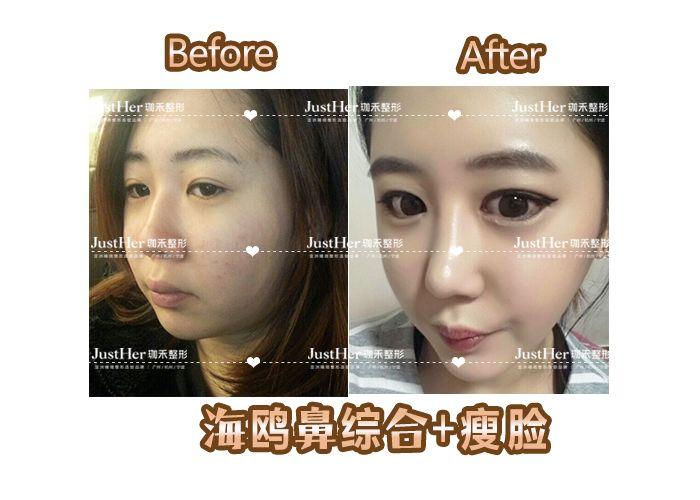 咬肌肥大得到了很好改善,配合鼻综合,面部立体感很强。