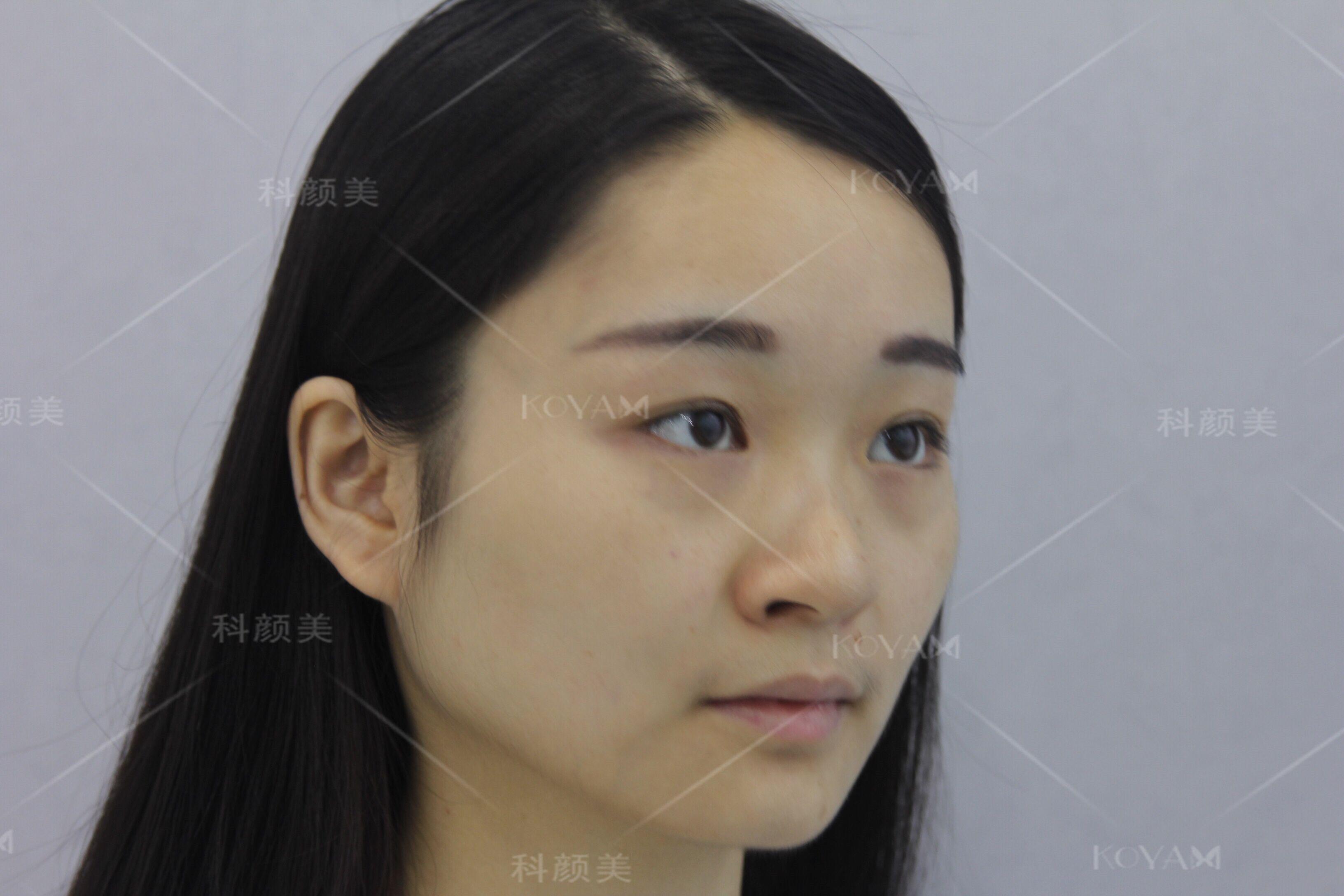 脸大的因素有多种可能,一个是咬肌,一个是骨头,还是一个是肉肉,宝宝的情况是属于咬肌偏大,只要对准位置打一针瘦脸针,效果会立马显现出来
