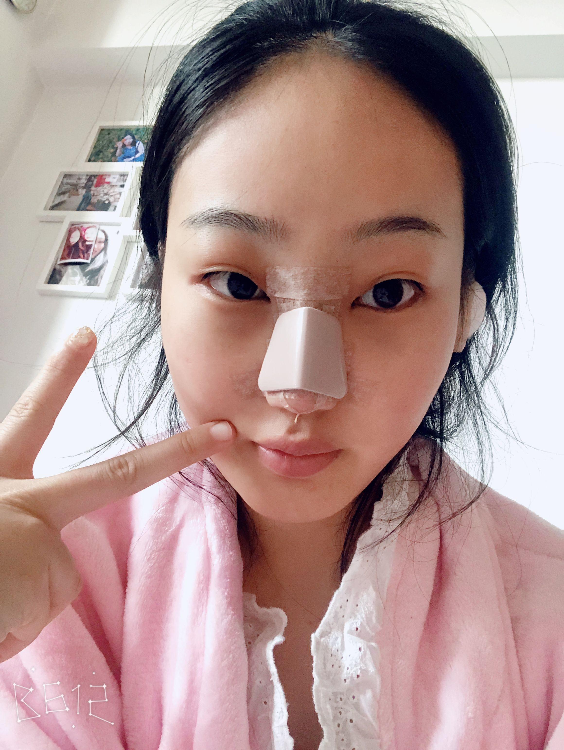 今天是我做鼻子的第四天,上图,没有任何不舒服的,就是上图!!!!