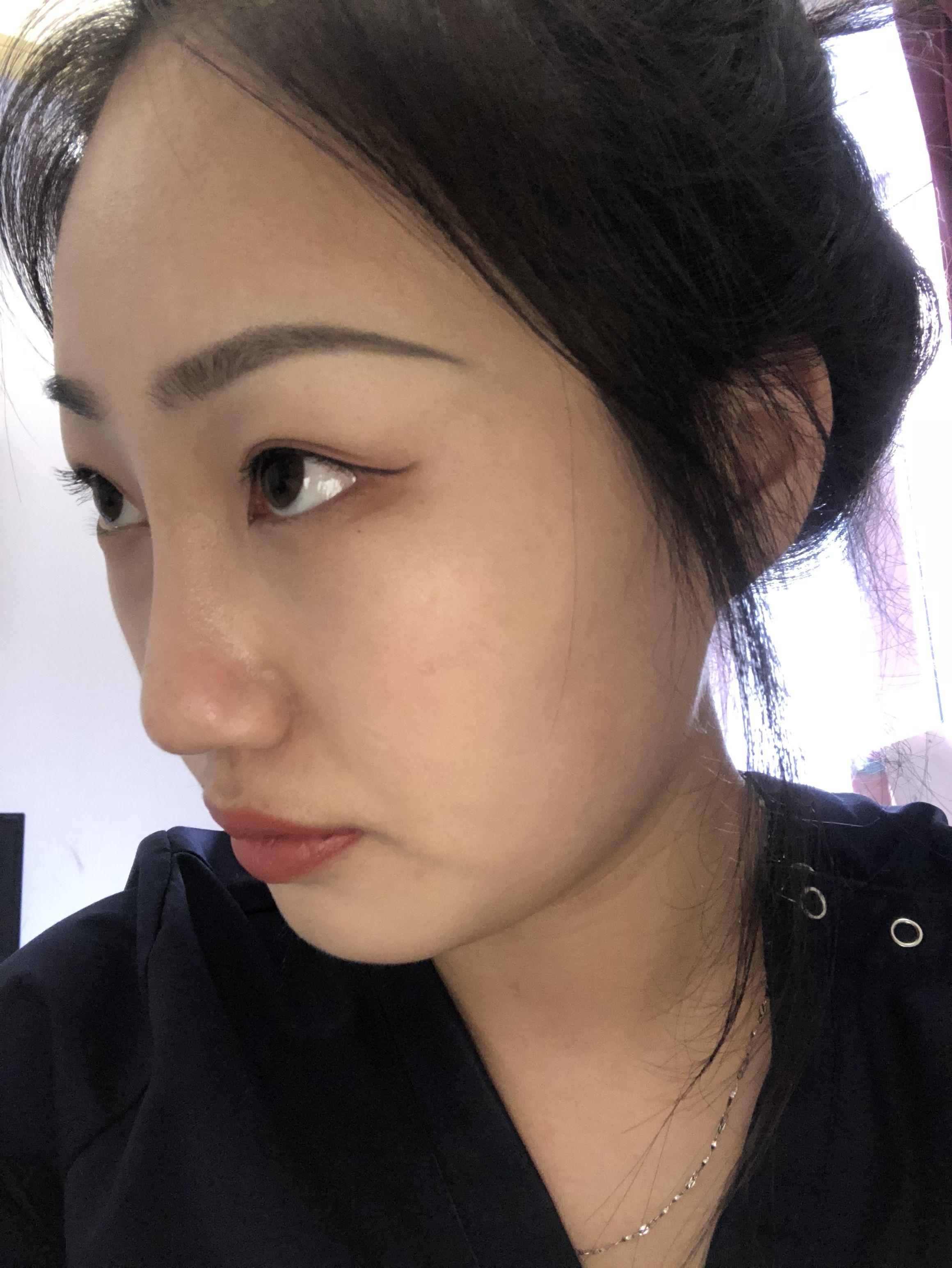 今天是术后一个月 鼻子几乎没感觉啦 稍微惺鼻涕的时候有点不舒服 鼻子也很自然 话不多说 上图