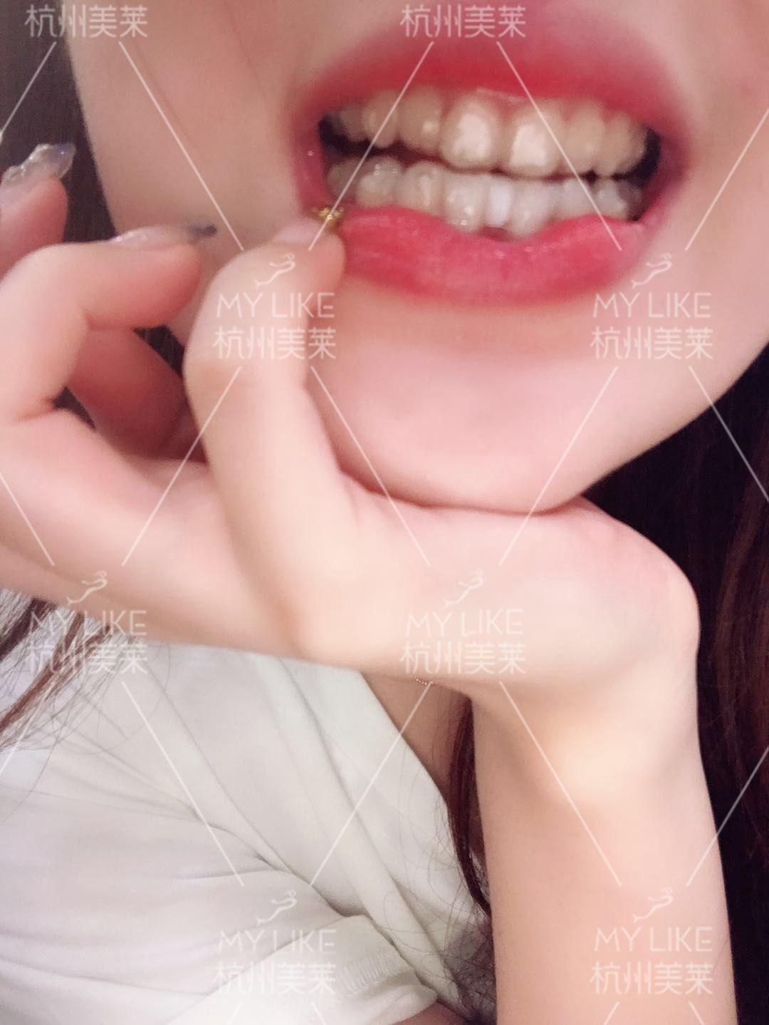 最近被越来越多的人夸漂亮了,嗯~不得不说,夸赞真的能让人开心呀!现在的我越来越不愿意素颜出门,因为想要一只漂亮下去呀!以前的我就算是化了妆别人还是会看出我牙齿的缺陷,现在不会啦!我的牙齿本身还是不错的,不管是色泽还是大小,只是不太听话乱长哈哈哈哈,马上我就要开始我的颜值新旅程啦!
