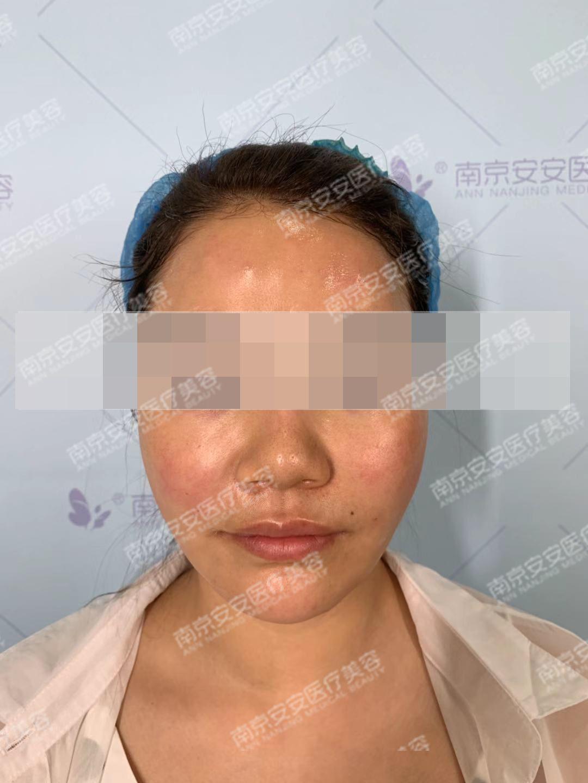 """脸上的颧骨太吸睛了,还是想要额头饱满一点的,就是他们说的那个桃心脸。然后几次面诊下来,对安安、对谢医师还是比较信赖的,不仅专业,而且会为顾客考虑很多。因为考虑到脂肪的""""不可取出性"""",所以手术方案是准确到了本次的额头、太阳穴的填充剂量的。方案出来后的当天,我就做了手术了。大概做了3个小时,额头、脸颊、太阳穴处都鼓鼓得,不过很难得,没有像别人的网图一样肿成了猪头,还是很欣慰的。然后静静等待我恢复好的样子~"""
