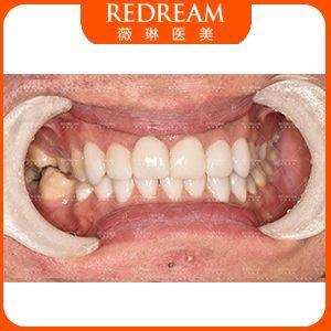 牙齿发黄,用美白贴片可以有效美白