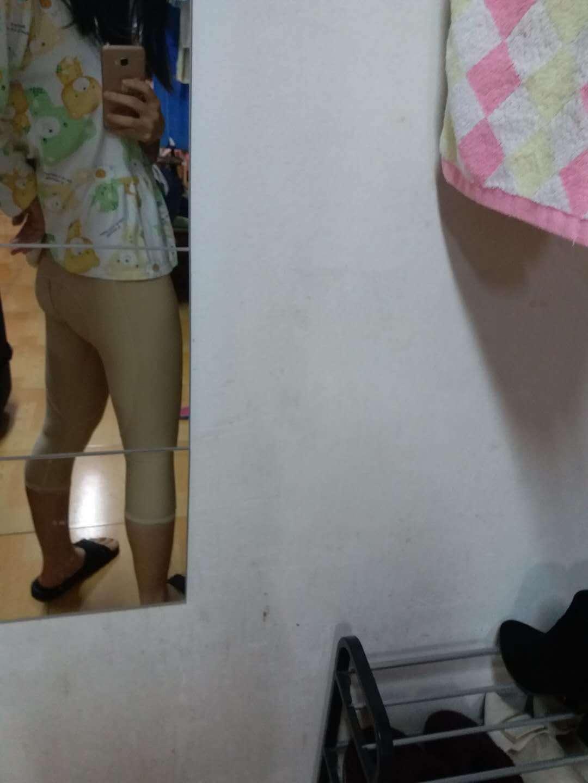 【长沙美研整形】【吸脂瘦大腿】 宝宝今天来医院复查,手术到现在快一个月了,恢复情况不错。内侧有些不平整,站直看起来不明显,需要继续穿着塑身裤恢复。现在穿着塑身裤走路活动基本没问题,也没有刚开始的时候穿脱不方便,所以还是除洗澡以外24小时穿着。腿围在51-52徘徊。