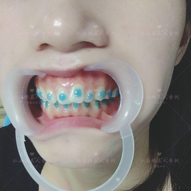 【顾客术后分享】 马上要上牙套了,趁着现在还没上牙套,赶紧拍一组自己牙齿的丑照上去,从今天开始我就要是钢牙妹了,但是我也不希望我带了牙套之后就不能吃东西了。我已经够瘦了不需要在减肥了,不知道会不会带上牙套之后会显得嘴很大呢?不管呢,牙齿变好了之后会比较好看吧,而且我戴的是半隐型的,应该不会很明显。不会一笑就很臭丑了,慢慢来,一点点改变。