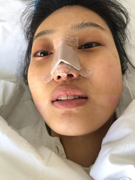 今天我终于做了我想了好久的隆鼻手术!!!开心!!! 我是属于本身脸比较大,但是鼻子很小,没山根,鼻头塌的那种,所以整个脸平面,不立体,哎,闹心 合计来合计去,赶紧做个鼻子吧,我选择的家附近的一个医疗美容医院,沈阳美莱医疗美容医院因为知名度挺大的在沈阳,然后我之前有朋友在她们皮肤科做过脸都不错,然后就选择这里了,虽然也知道整容有风险,但是还是要挑战! 我是4.19号来医院面的诊,是韩东主任给做的,主任特别和蔼,没架子,整个面诊过程都挺轻松,要求就是鼻子挺一点,要自然的那种,然后最后选择的是他们医院的完  美鼻型,用的国产膨体和耳软骨垫鼻尖。 然后就开始准备啦,术前拍照,清理鼻毛,输血化验,然后护士给埋个针准备麻药用的,手术是全麻,十秒钟就啥也不知道啦,哈哈哈哈哈哈哈 做完一个半小时,出来了,也不疼不痒而且轻微肿痛,别人都特别惊讶说你这鼻子也没啥事啊,哈哈哈哈哈,还是主任技术好