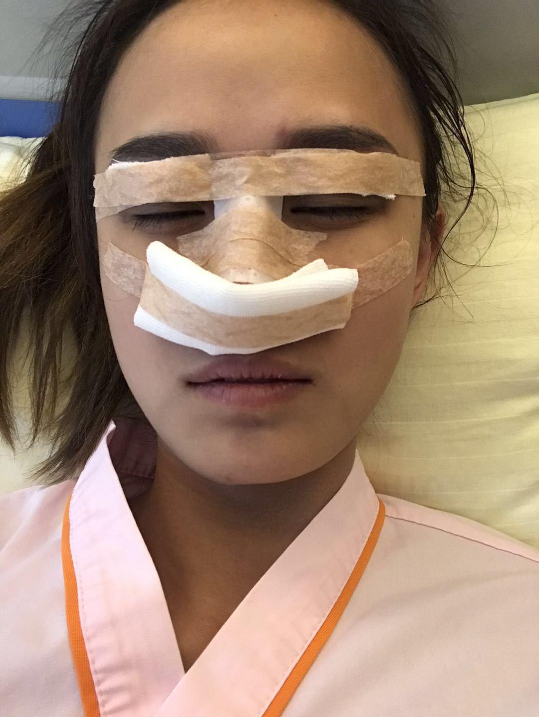 手术开始前我还很紧张。今天我做的是眼睛、鼻子、术后留张照片做纪念吧