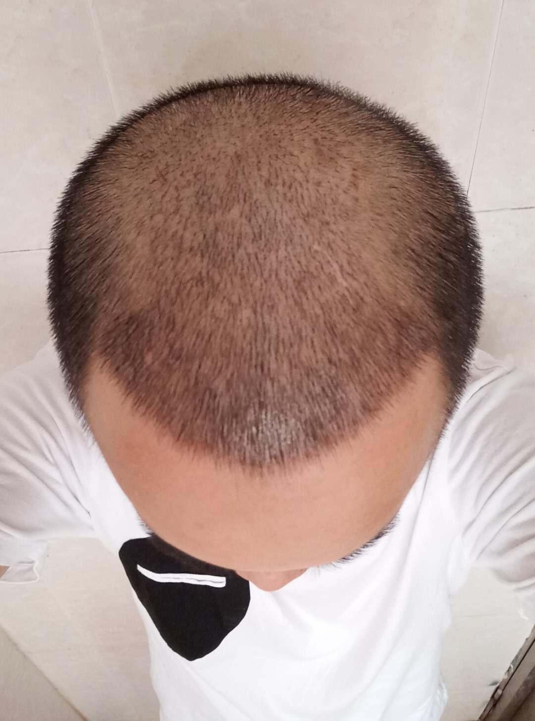 头顶轻微脱发可以植发吗