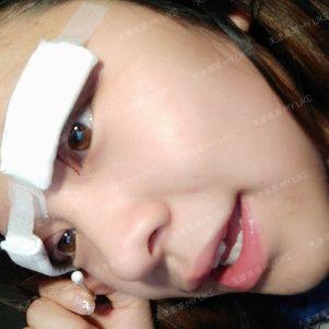 第一天,术后麻醉效果过去了,有一点微微的疼痛,不过为了美,这些都能忍受的。