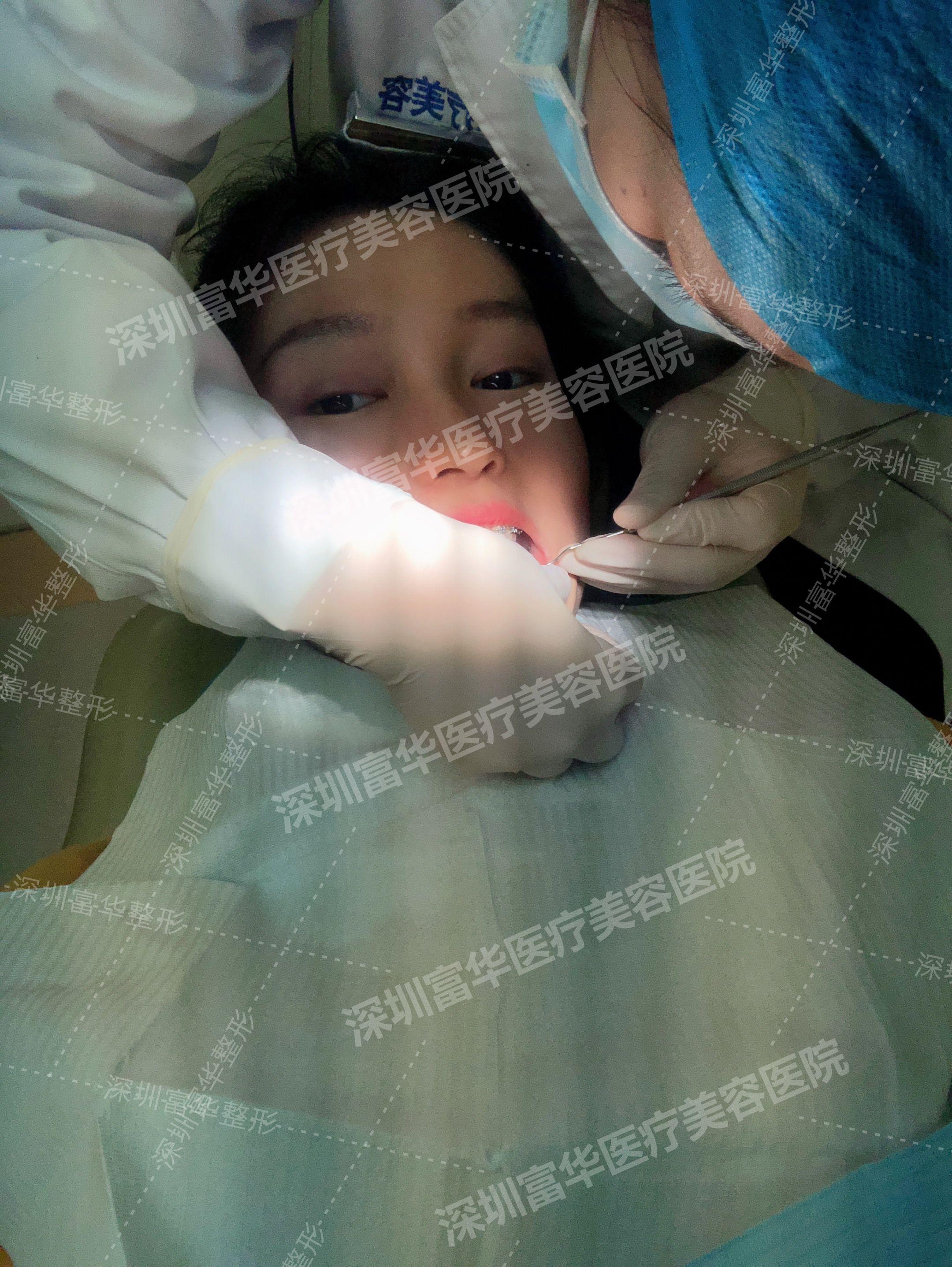 已经是第五次复诊牙齿啦,改变超级明显,之前歪歪扭扭的牙齿现在基本都排列整齐了,只是我的牙齿还有一点轻微开颌,我的治疗医生说还要后续慢慢调整。现在就是感觉自己的牙齿一天比一天更整齐了,这里必须夸一夸我的治疗医生,每次他都很认真仔细的帮我调整钢丝,不吹不黑。我带牙套这么久,别人说的钢丝刮嘴,牙齿疼痛的问题我都没有,只是每次换完钢丝后牙齿有被拉紧的感觉,有点咬不动东西,持续一个礼拜左右吧,在这期间我就不吃太硬的东西。然后每次复诊完医生都会友情提示我不能喝肥仔快乐水(可乐)影响治疗。嗯,忍住吧姐妹们,我已经5个月没喝过了,就当减肥了。