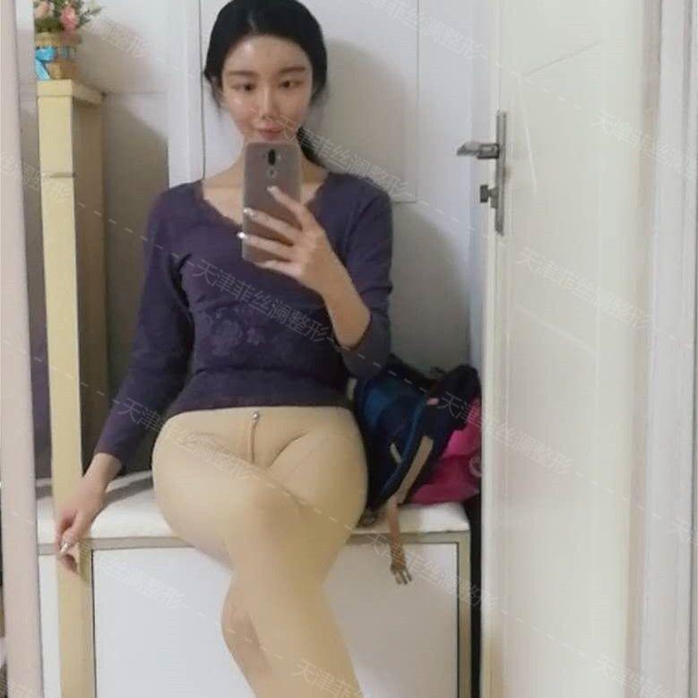 谁不希望瘦脸越好越来,我的筷子和我喜欢的那种身材腿,差好多,v瘦脸也恢复能完大腿快点打怎样针图片