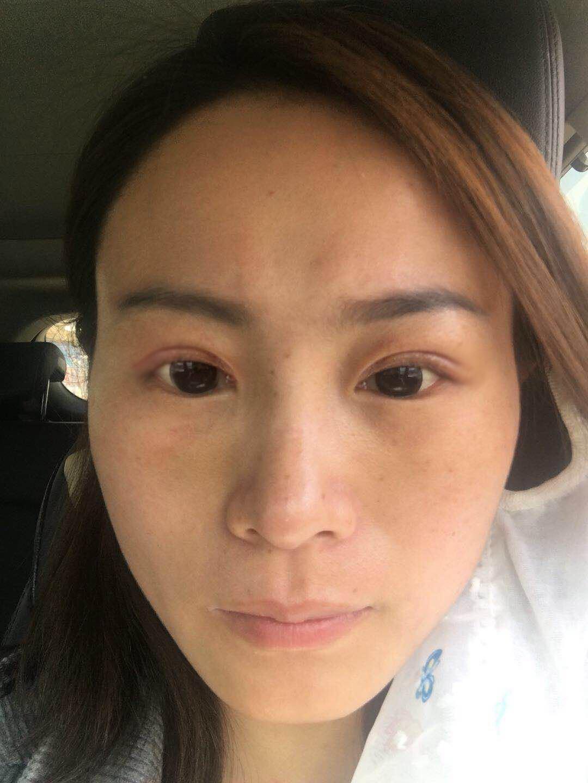 安琪拉萌眼术