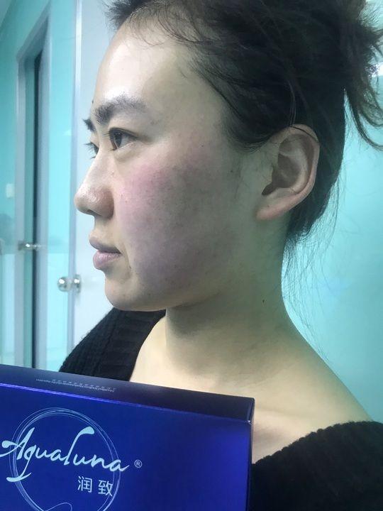 润致玻尿酸隆下巴 项目分类:玻尿酸 玻尿酸垫下巴