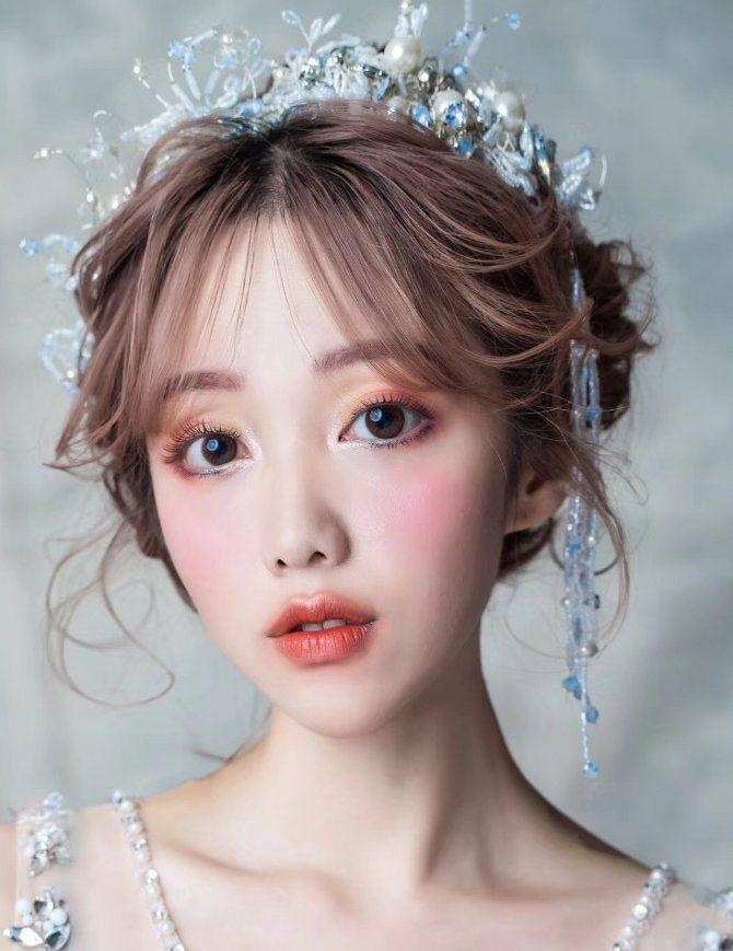李女士 项目分类:眼部整形 双眼皮 埋线双眼皮