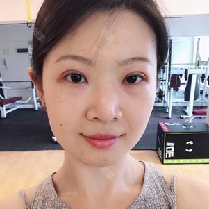 【铜雀台 眼综合】 项目分类:眼部整形 眼部综合