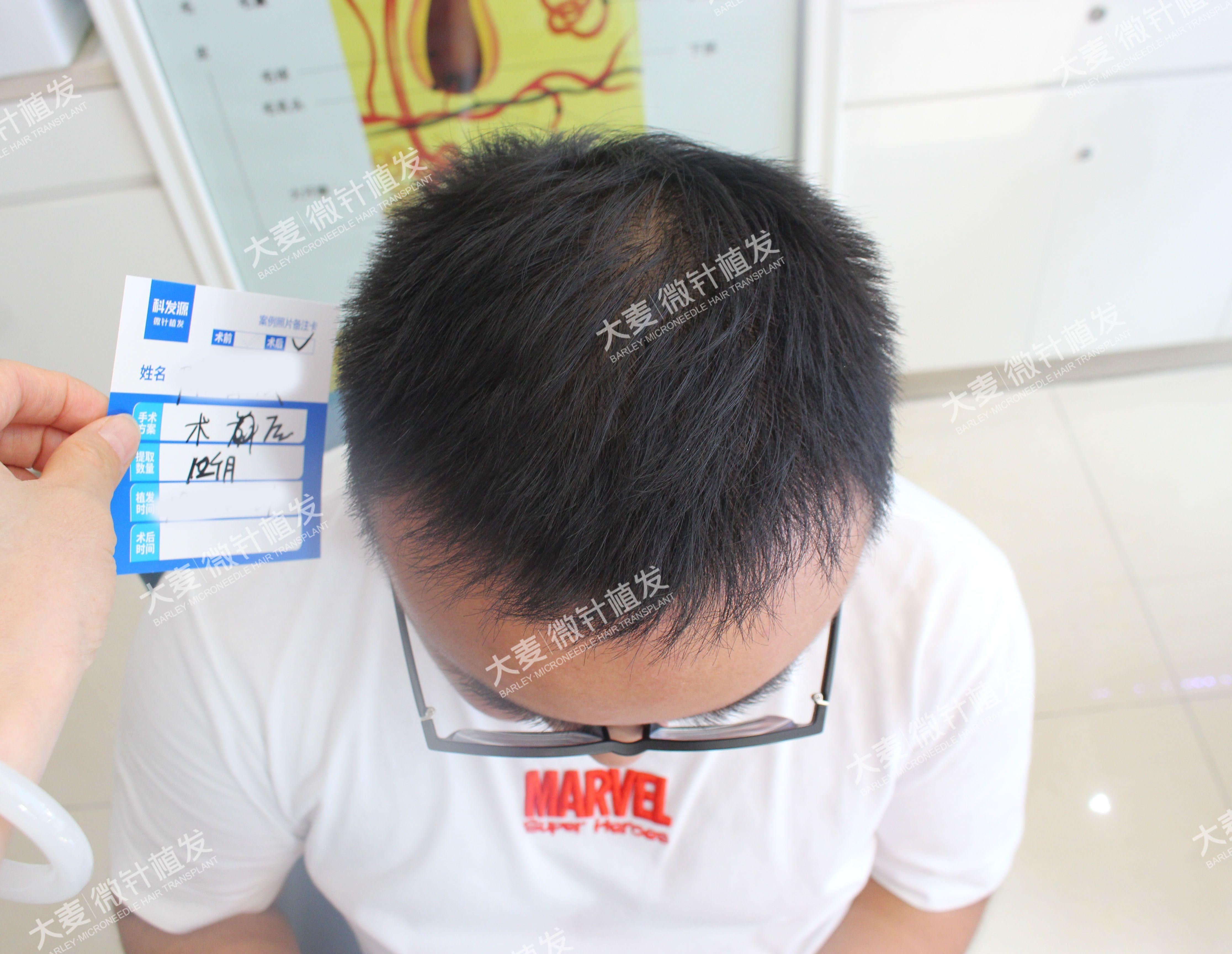 大麦微针植发|发际线种植 项目分类:植发养发 植发 种植发际线