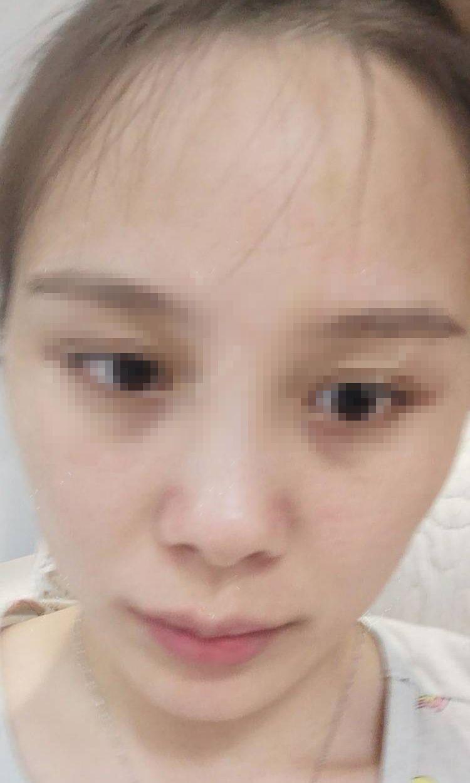 超皮秒嫩肤 项目分类:皮肤管理 祛斑祛痣 激光祛斑