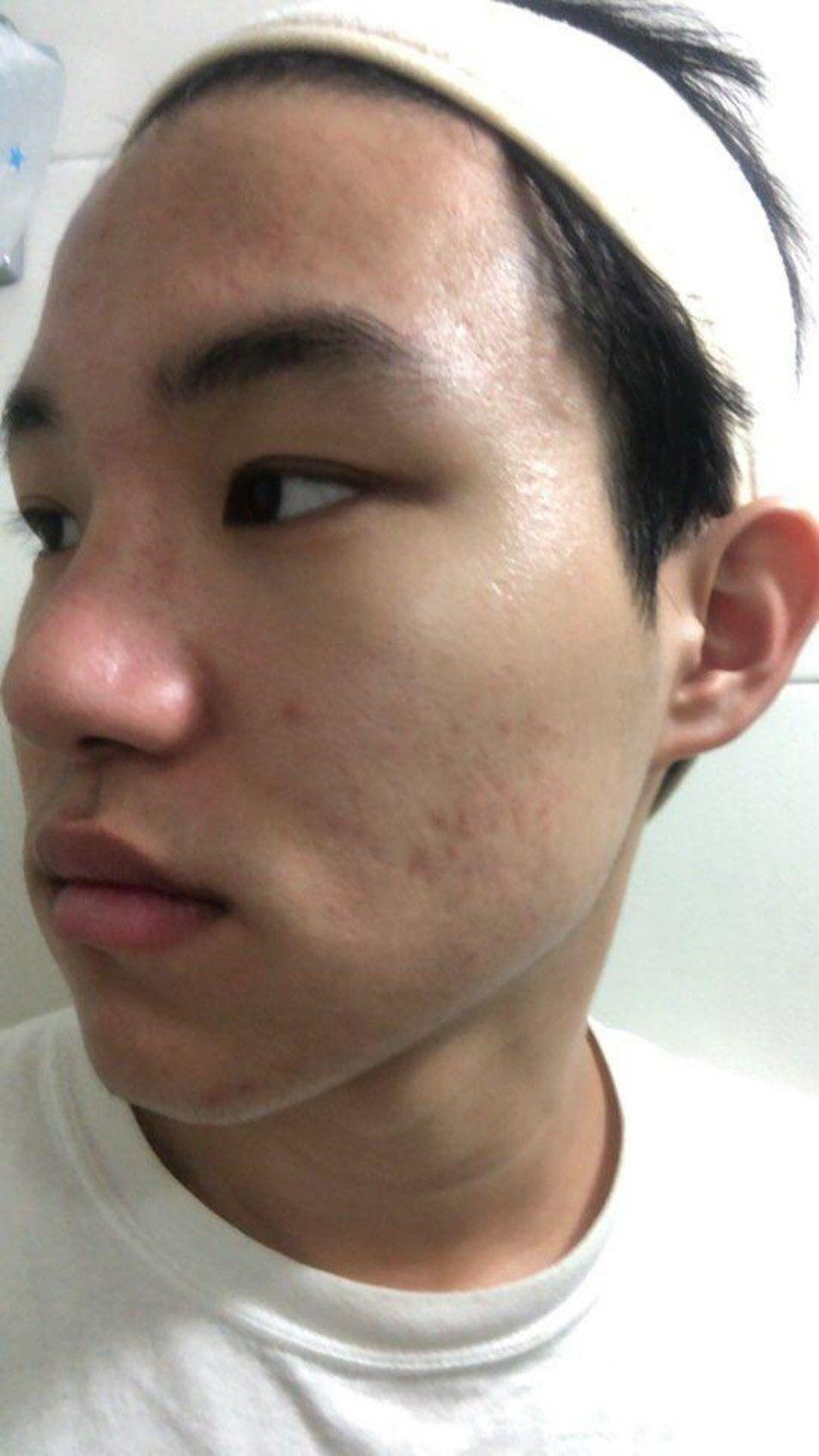 男性祛痘痘疤痕 项目分类:皮肤管理 祛疤痕 手术祛疤